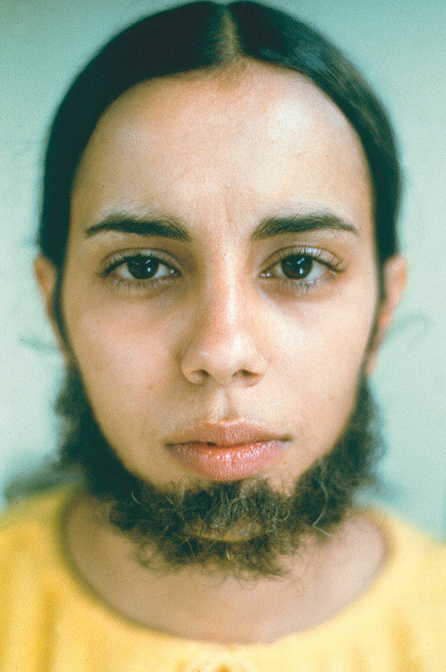 Ana Mendieta, 'Untitled (Facial Hair Transplants)', 1972. Photo: © The Estate of Ana Mendieta Collection, LLC Courtesy Gallery Lelong & Co